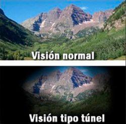 Glaucoma: Visión Tipo Tunel